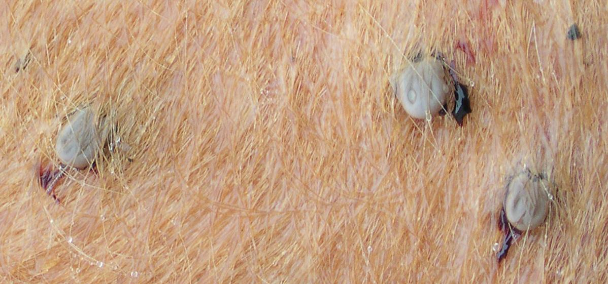 Les raisons des parasites dans lintestin